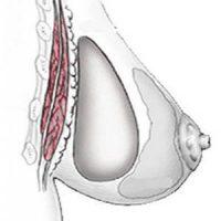 disposition pré-musculaire rétro-glandulaire